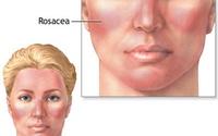 Loại gel mới chữa bệnh đỏ mặt