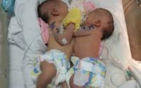Sáng nay, mổ tách rời 2 bé song sinh dính nhau