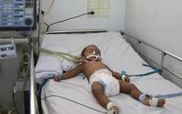 Cứu sống bé trai ngưng thở vì biến chứng bệnh sởi