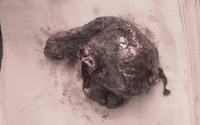 Bệnh nhân nghiện thuốc lá bị u phổi to như trái bưởi