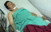 Cứu sống bệnh nhân bị hàng xóm đâm thủng tim