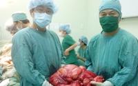 Lấy khối u 11 kg khỏi bụng bệnh nhân
