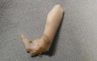 Bé 1 tuổi bị hóc xương lợn khi ăn cháo hầm xương
