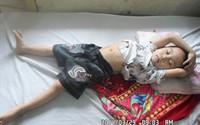Xót xa cậu bé dân tộc Thái 5 tuổi chờ chết trên giường bệnh