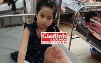 """Nghiệt ngã cuộc đời bé gái trong 10 năm trải qua 11 ca phẫu thuật vì căn bệnh khiến chân """"tự lớn lên"""""""