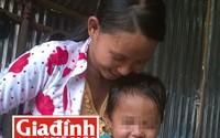 """Cháu bé sinh ra đã có 2 """"của quý"""": Bệnh viện Tâm Trí Sài Gòn sẵn lòng mổ miễn phí"""