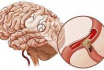 Nhận biết thiếu máu não