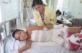 Gia cảnh đáng thương của cậu bé bị bỏng nặng phải cắt bỏ bộ phận sinh dục