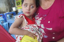 Sức khỏe của bé bị mờ hai mắt bẩm sinh ngày càng yếu