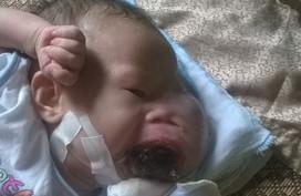 Vòng tay Nhân ái (MS 133): Xót xa bé gái 5 tháng tuổi mặt biến dạng vì khối u ở miệng