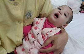 Cháu bé 23 tháng tuổi chưa biết ngồi vì mắc bệnh hiếm đã qua đời