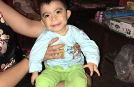 Xót xa em bé 3 tuổi chỉ 6kg với hai bàn tay đều không lành lặn