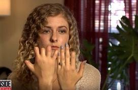 Kỳ lạ cô gái đau họng mất ngón chân, ngón tay
