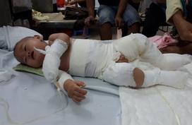 Mẹ câm điếc, bố mù, con trai 10 tháng tuổi nguy kịch vì bỏng nặng