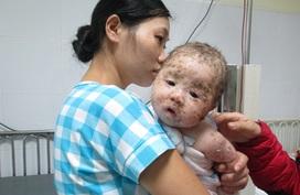Nhìn bé trai 4 tháng tuổi đau đớn vì thủy đậu biến chứng, ai cũng xót xa