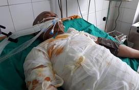 Vụ cháy xưởng bánh kẹo ở Hoài Đức: Hoàn cảnh khốn khó của bé trai may mắn thoát chết