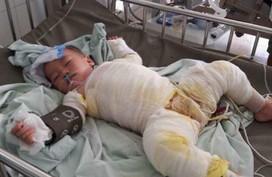 Xót xa cậu bé 3 tuổi khổ sở vì di chứng bỏng nước sôi kinh hoàng