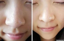 Những cách trị mụn đầu đen ở mũi bằng chanh vừa nhanh vừa đơn giản, lại vô cùng hiệu quả