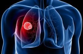 """Người phụ nữ này bị ung thư phổi ở tuổi 31, nguyên nhân do chính thứ """"ẩn nấp"""" trong nhà mà không ai nhìn thấy"""