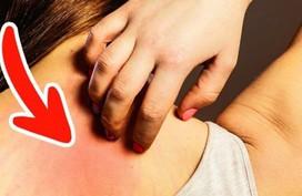 7 dấu hiệu cảnh báo ung thư sớm, 90% mọi người thường bỏ qua
