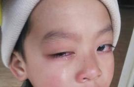 Giáo viên bị tố cáo đánh tổn thương mắt học sinh lớp 1