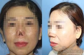 Mũi quý bà Sài Gòn cụt lủn sau nâng mũi tại thẩm mỹ viện