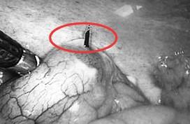 Vật sắc nhọn xuyên thủng ruột thừa, người đàn ông bị mưng mủ trong ổ bụng