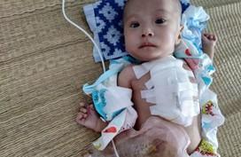 Sự sống mong manh của bé trai 4 tháng tuổi gồng mình chống chọi đủ thứ bệnh