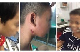 """Nóng: Phát hiện 3 ca trẻ em mắc vi khuẩn """"ăn thịt người"""" tại Nghệ An"""