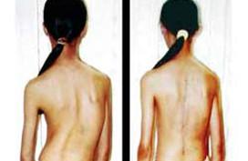 8 suất phẫu thuật vẹo cột sống miễn phí