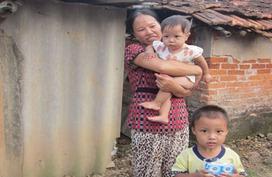 Mẹ nghèo cạn nước mắt nuôi hai con bị bệnh bẩm sinh
