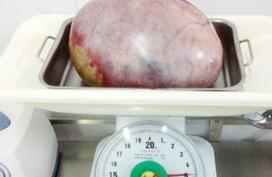 Cô gái mang khối u buồng trứng to như quả dừa