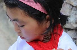 Xót xa bé gái người Mông mồ côi cha, mẹ bỏ rơi đau đớn trong bệnh lạ