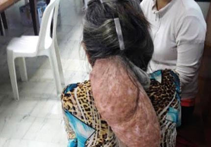 Cụ bà mang khối u hình thù quái dị ở sau gáy
