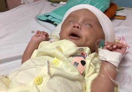 Xót xa bé trai mới 1 tháng tuổi đã 3 lần phẫu thuật vì não úng thủy