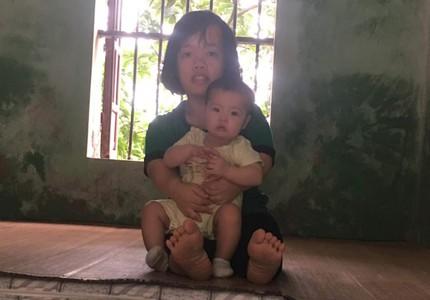Tâm sự xót đau của cặp vợ chồng khuyết tật giàu nghị lực có con gái nhỏ bị teo mật bẩm sinh