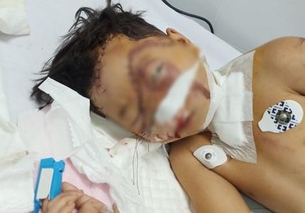 Xót xa bé trai 7 tuổi theo mẹ đi làm gạch bị tai nạn thương tâm
