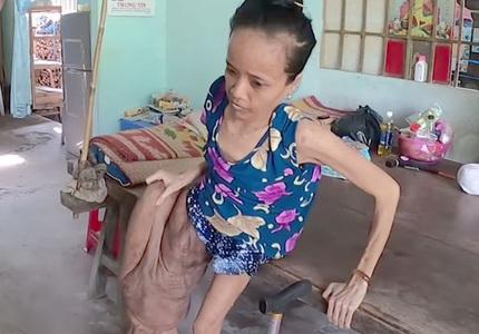 Cảnh đời buồn của người phụ nữ có chân to nhất Việt Nam