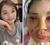Rạch nhiều vết trên mặt để cứu cô gái trẻ ở Hà Nội tiêm mỡ tự thân làm đẹp
