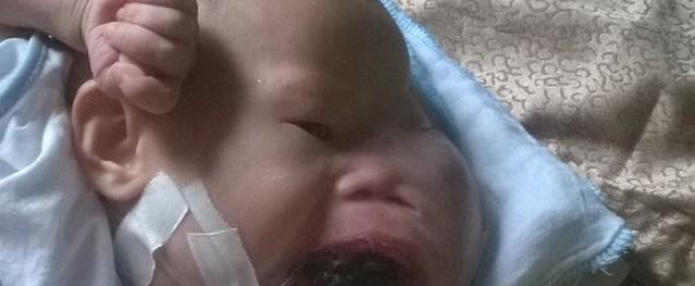 Bé 5 tháng tuổi mặt biến dạng vì khối u ở miệng đã qua đời