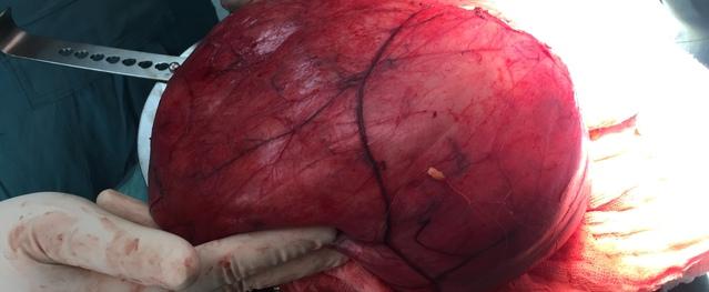 Phẫu thuật thành công khối u khổng lồ 6kg nằm trong ổ bụng bệnh nhân
