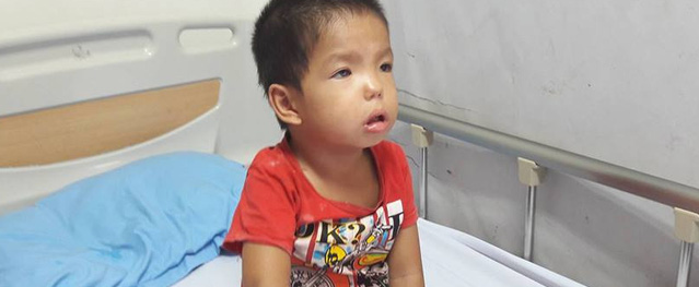 """Bé trai 3 tuổi dân tộc vừa câm điếc vừa mắc bệnh """"ưa chảy máu"""""""