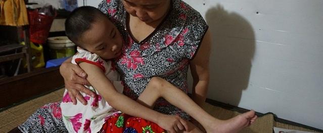 Sau hai lần phẫu thuật não, bé gái mồ côi đang rất nguy kịch