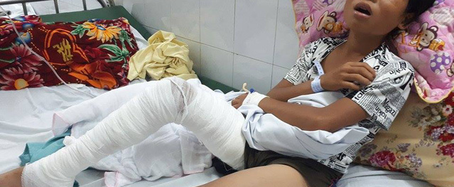 Cậu bé bị hổ tấn công, cào nát chân nằm đau đớn trong viện Bỏng