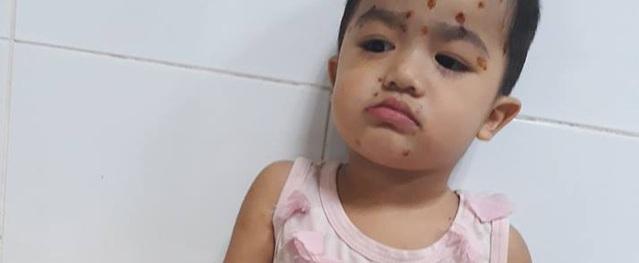Sức khỏe của bé gái 2 tuổi cùng lúc mắc nhiều bệnh chưa ổn định