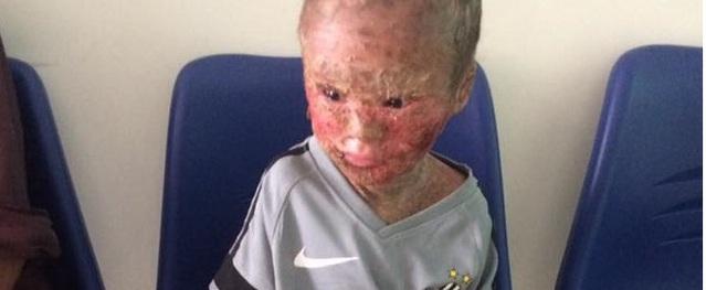 Xót xa bé 9 tuổi bị mẹ bỏ rơi khi biết con mắc phải bệnh lạ