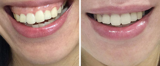 Phẫu thuật cắt lợi có làm răng yếu, dễ rụng?