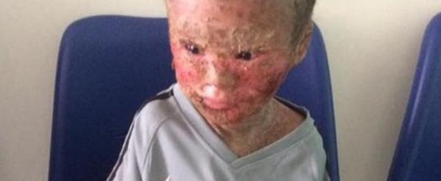 Gần 16 triệu đồng đến với cậu bé mắc phải căn bệnh da lạ