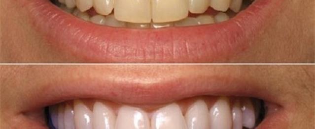 Chà vỏ chuối chín vào răng theo 2 bước sau, cô gái hốt hoảng trước kết quả