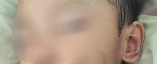 Bình Dương: Người mẹ trẻ tiếp tay cho chồng hờ, bạo hành con trai 2 tuổi phải nhập viện cấp cứu?